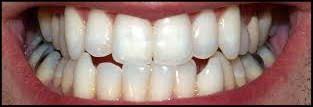 Good Teeth Human