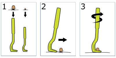 Tick Twister Usage